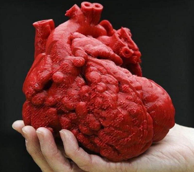 Imprimen un coraz n en 3d y salvan la vida de un ni o en - Como hacer un corazon con fotos ...